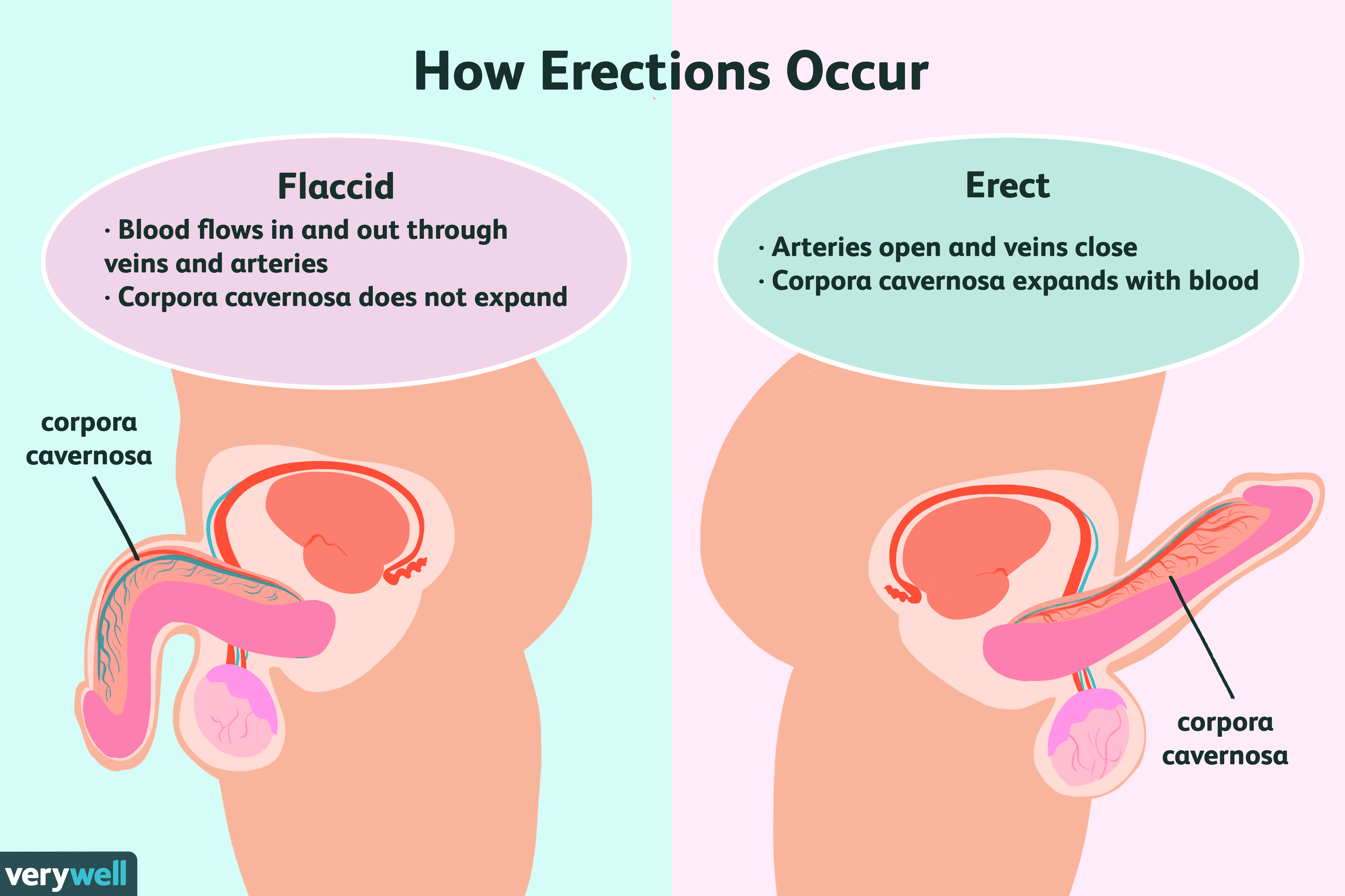 breast cysts have septations